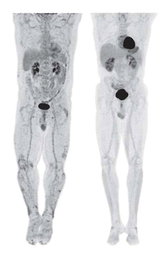 PET/CT Scan Showing Inflammation