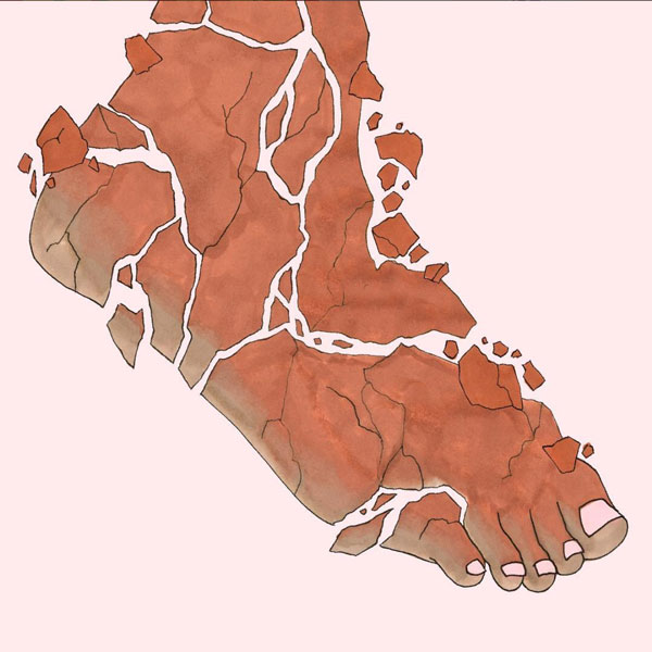 The Psoriatic Foot