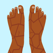 How Psoriasis Can Affect Your Feet