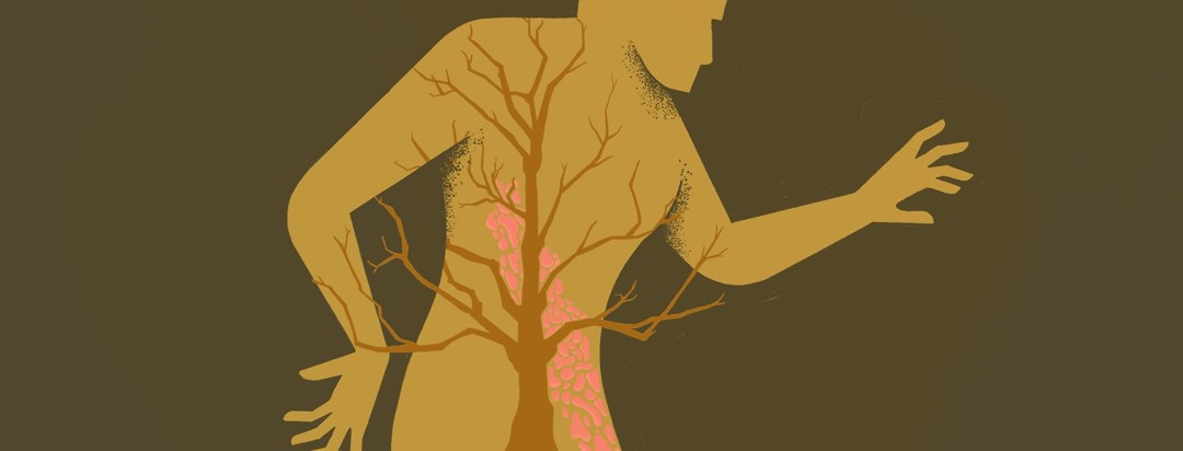 Silhouette of a body with plaque across its abdomen in front of a tree