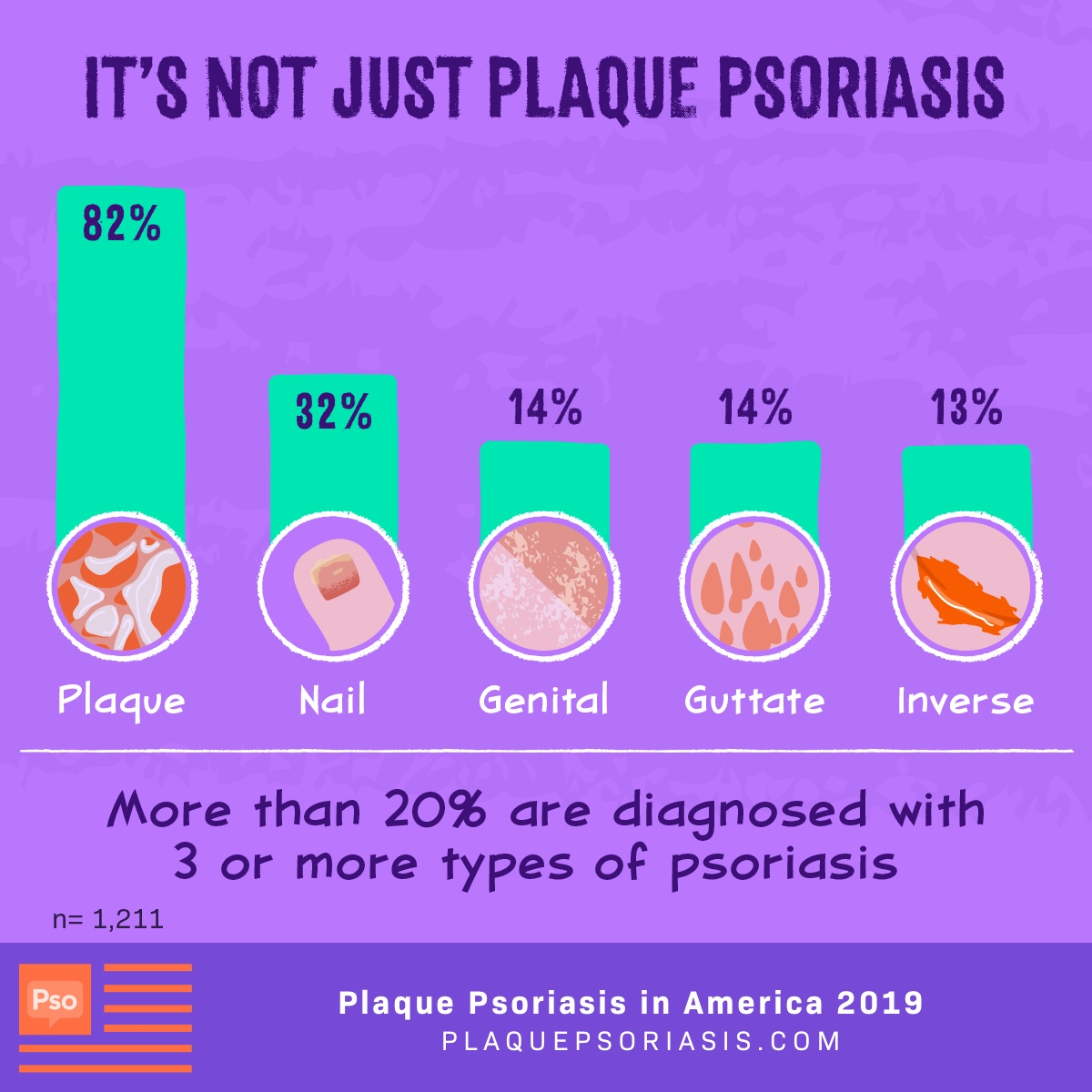 More than 20% are diagnosed with 3 or more types of psoriasis. The most common types being plaque (82%), nail (32%), genital (14%), guttate (14%) and inverse (13%).