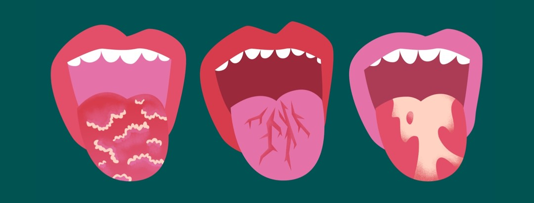 Three open mouths with different kinds of psoriasis visible on the outstretched tongues