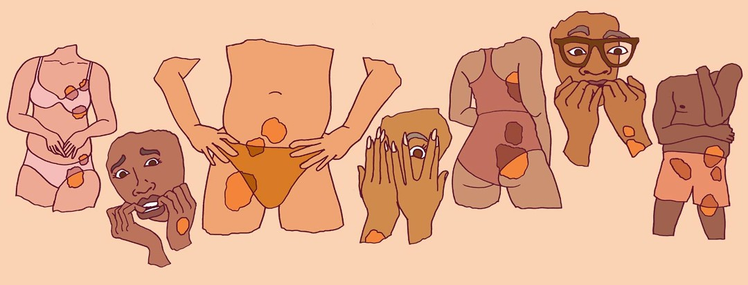 A collage of various torsos with plaques covering sensitive areas. There are two grimacing faces in the corners.