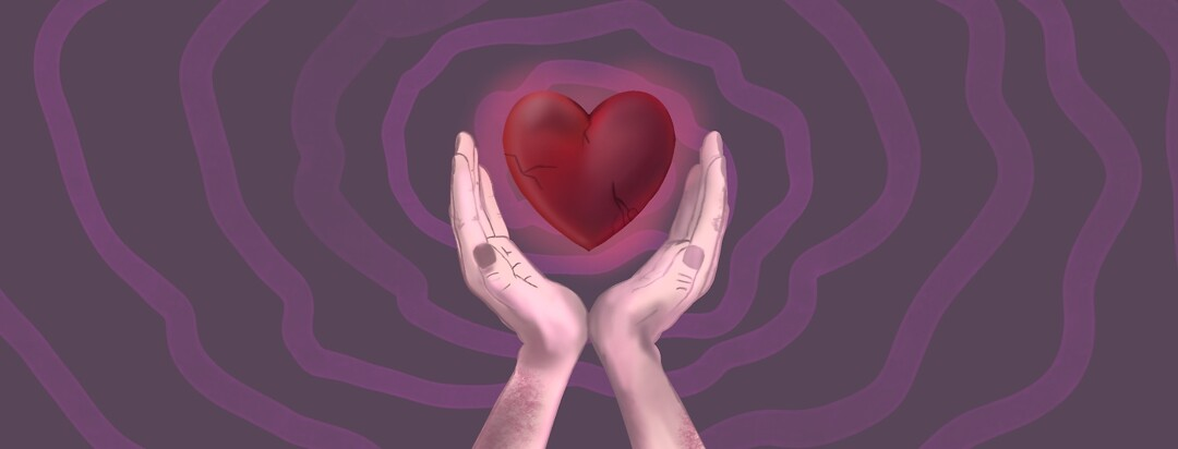 Two hands with psoriasis on arms holding a hovering battered heart.