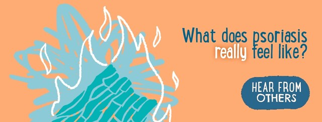 In Our Own Words: What Psoriasis Really Feels Like image