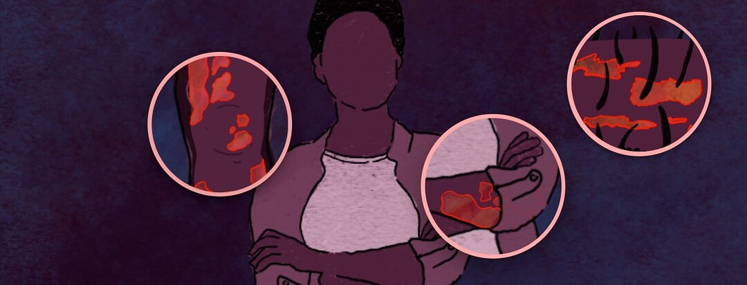 An NB person is standing with their arms folded across their chest. Contained in circles around them are the top 3 locations where people living with psoriasis say their plaques are.